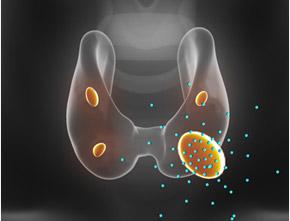 Parathyroid Adenoma