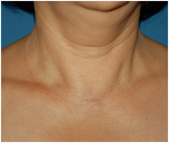 womans neck with invisible parathyroid surgery scar