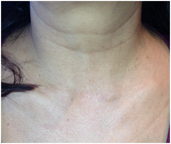 Parathyroidectomy Incision