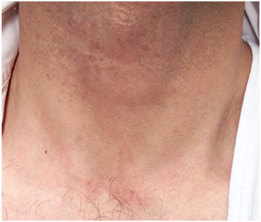 male patients neck with an invisible parathyroid surgery scar