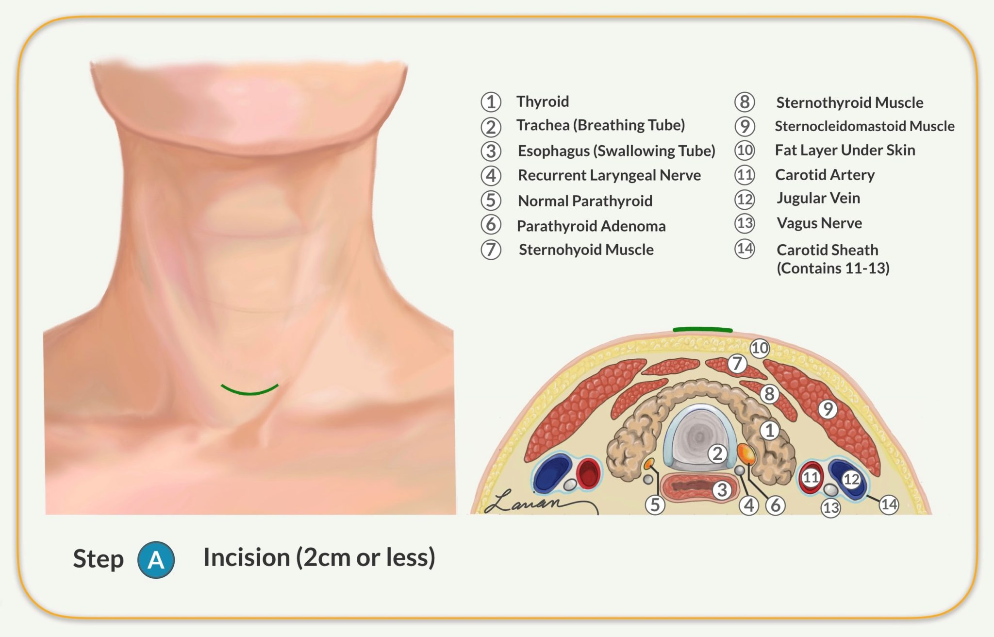 parathyroidectomy anatomy steps