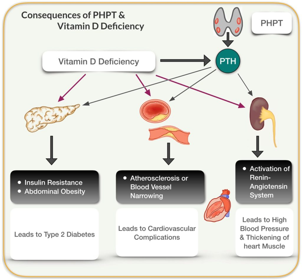 diagram of vitamin d deficiency and phpt