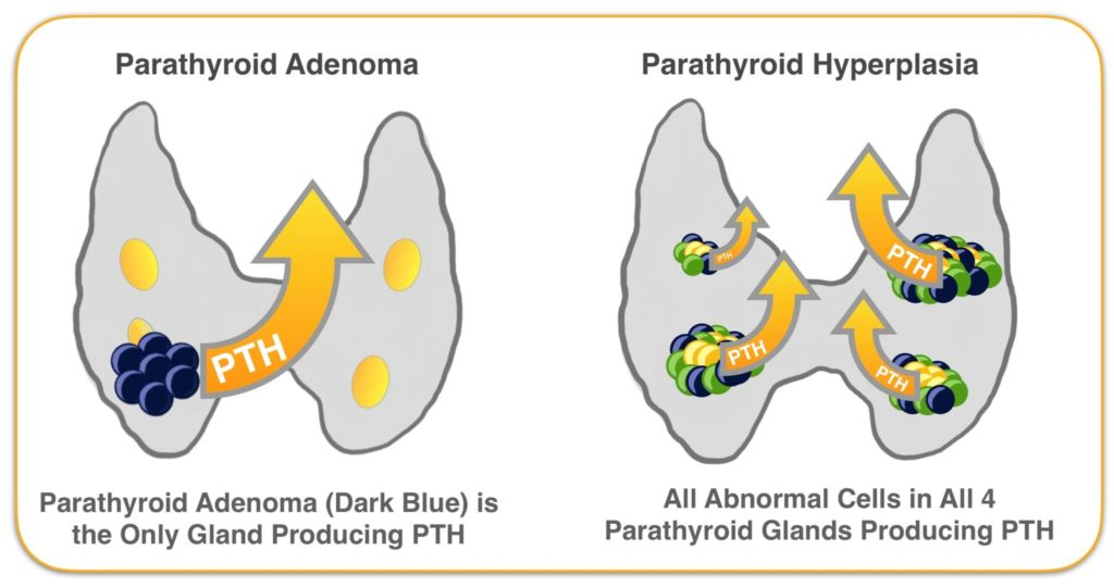 Parathyroid Adenoma and Hyperplasia Glands Producing PTH