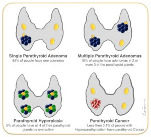 parathyroid adenoma, hyperplasia, and cancer