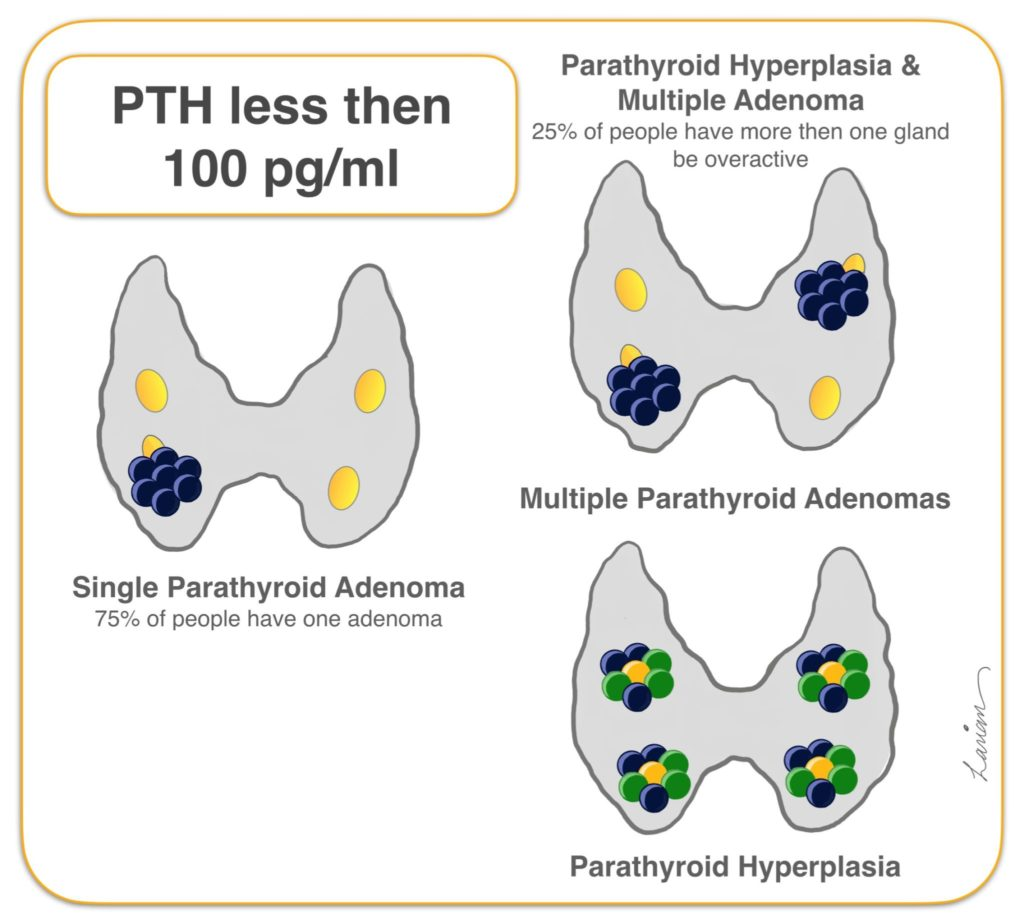 parathyroid hyperplasia and mutiple adenoma PTH less than 100 pg per ml