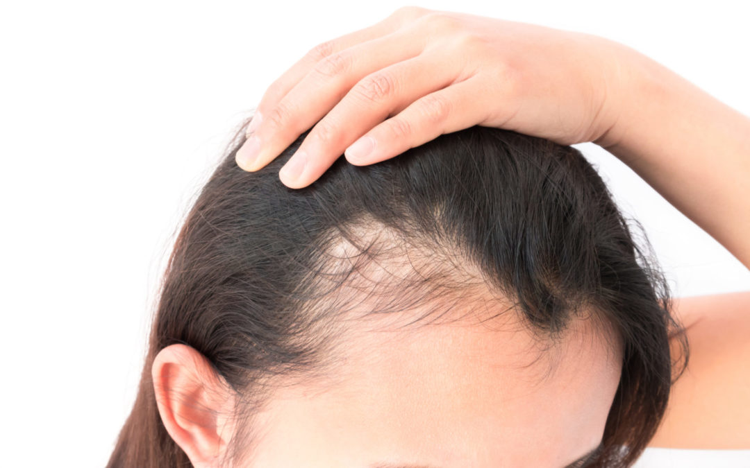 Does Hyperparathyroidism Cause Hair Loss?